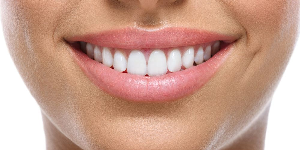 Porcelain-Veneers-Dr-Harman-panorama