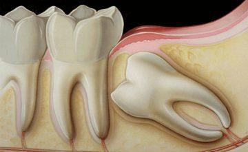 wisdom_teeth